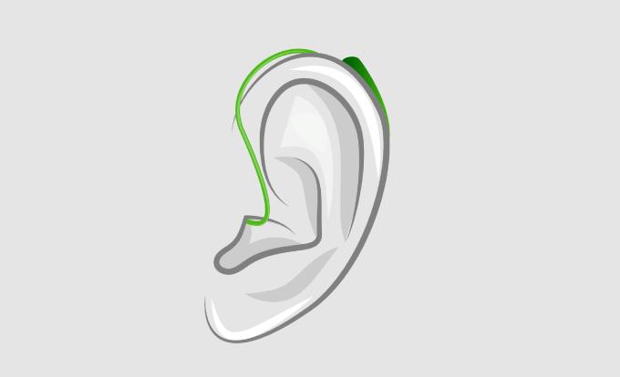 Audífonos Oído Abierto (RIC)